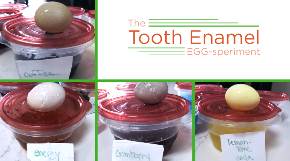 Watch how eggshells demonstrate which beverages stain tooth enamel the most.